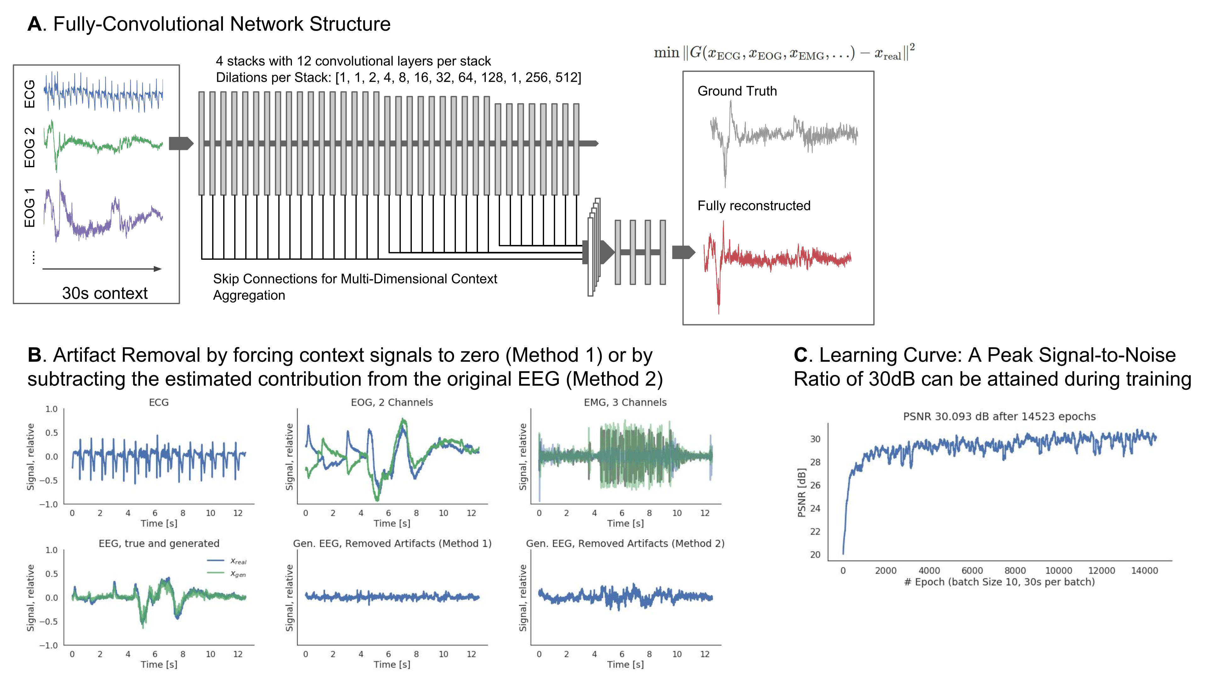 A. Proposed WaveNet-inspired network architecture. Using recordings from ECG, EOG and EMG recordings as context signals, the network generates an EEG sequence matching the context signals. B. Demonstration of artifact removal C. Network learning curve